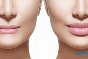 وصفات طبيعية لتصغير الفم