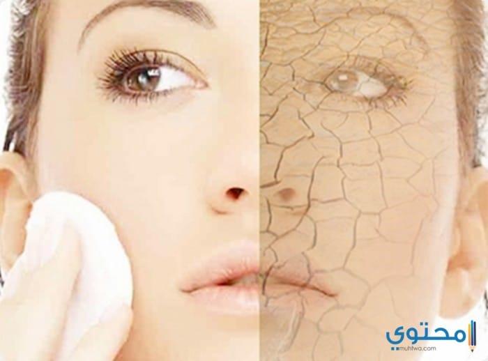 وصفات طبيعية للتخلص من جفاف الوجه