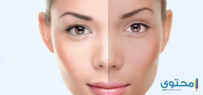 أسباب تغير لون البشرة
