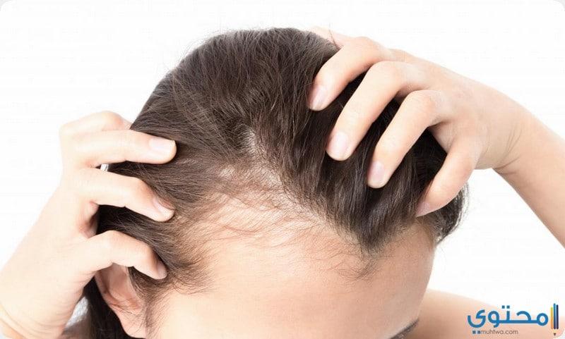 عناوين مراكز زراعة الشعر في الرياض