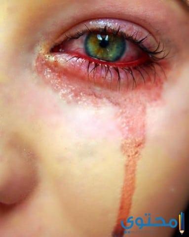 صور بكاء وزعل