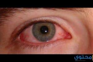 تفسير رؤية العين المصابة في المنام