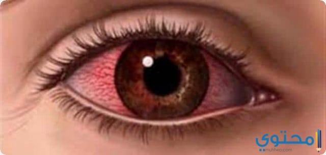 رؤية العين المصابة