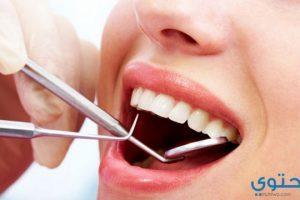 اسأل عن تفسير رؤية تكسر الاسنان والضرس