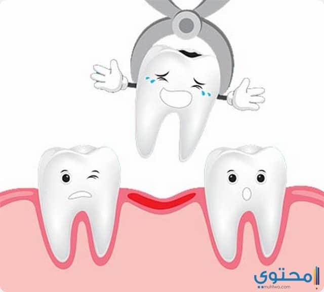 خلع الأسنان