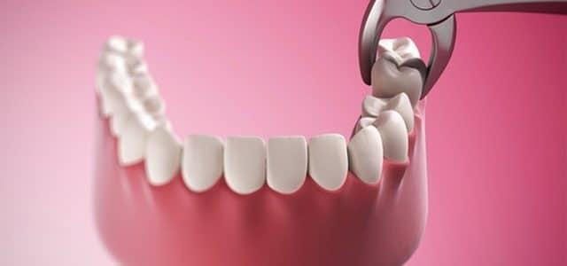 تفسير حلم خلع الأسنان في المنام ومعناه