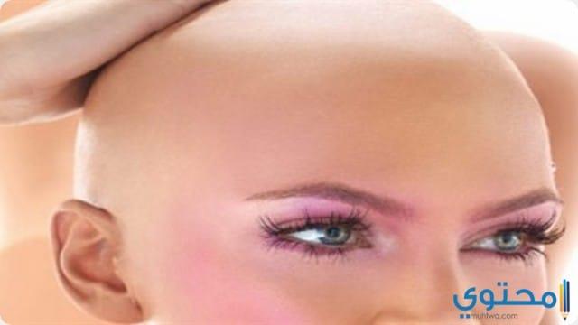 رؤية حلم المرأة بلا شعر