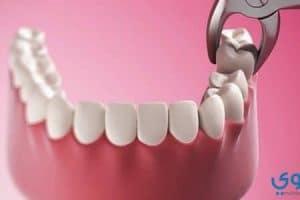 تفسير رؤية خلع الأسنان في المنام