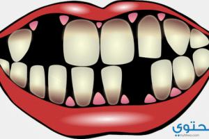معني سقوط الأسنان في الحلم