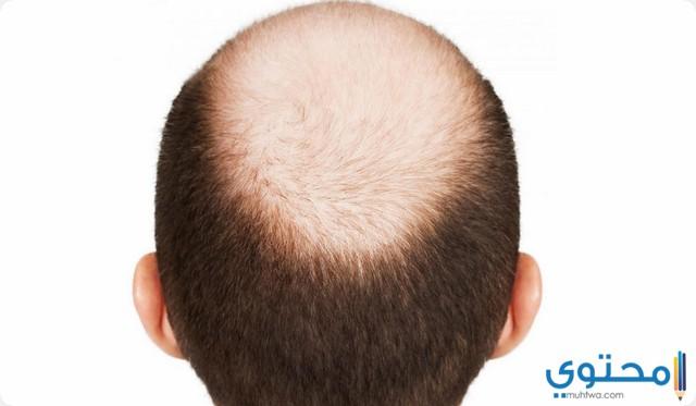 الرأس في المنام وتفسير رؤية الرأس لابن سيرين موقع محتوى