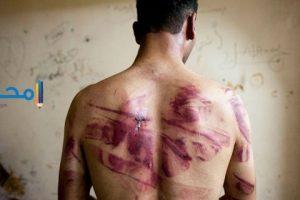 تفسير رؤية التعذيب فى المنام بالتفصيل