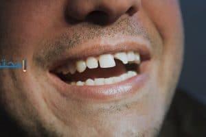 تفسير رؤية تكسر الأسنان والضرس