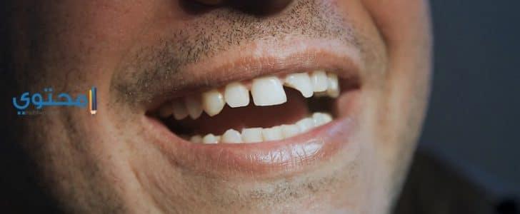 ضرس العقل هو أحد الأضراس التي يعاني منها الكثيرين وهو آخر الضروس التي تظهر  في فم الإنسان. سمي هذ الضرس بضرس العقل لأنه يظهر في السن ما بين 17 إلى 25  سنة ...