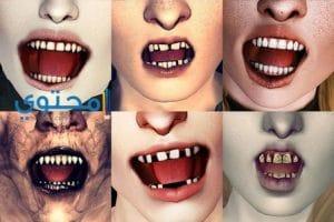 تفسير رؤية الضرس والأسنان عند إبن سيرين والنابلسى