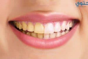 كيف يمكن تبييض الأسنان بطريقة طبيعية ؟
